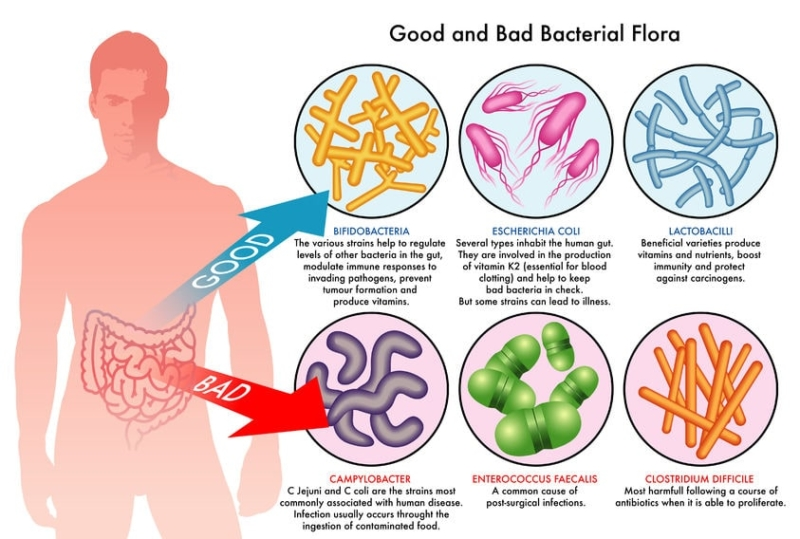 gut bacteria - good and bad